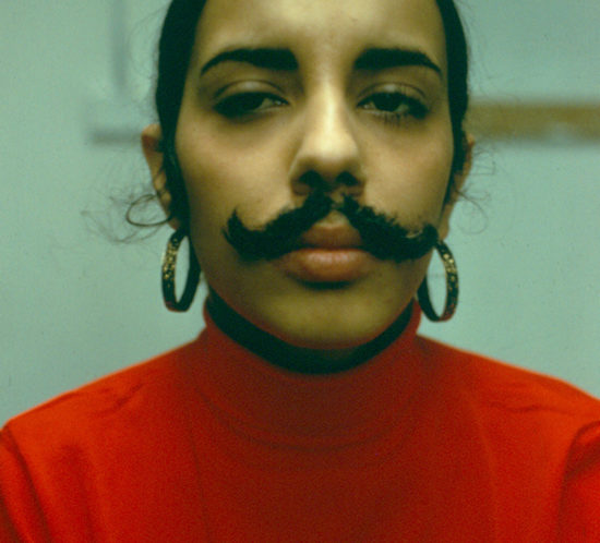 UNTITLED (Facial hair transplant). 1972. 41 x 51 cm. PHOTOGRAPH